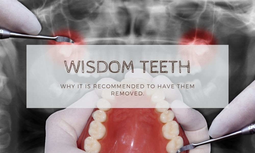 Wisdom-Teeth-Extraction