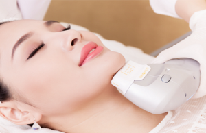 laser treatment for-pigmentation