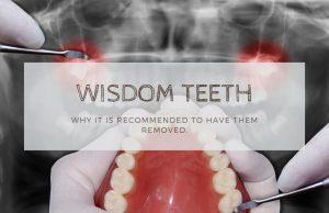 Wisdom-Teeth-Extraction